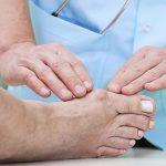 Los juanetes, una lesión cada vez más común en el runner